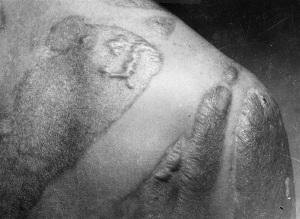 Cicatrici sulla pelle di uomo che è stato esposto all'onda di calore e radiazioni dovuta allo scoppio della bomba